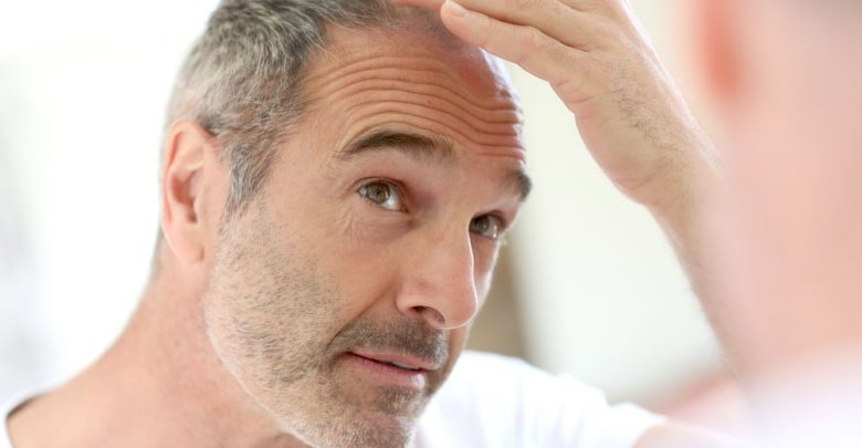 Photo of Top Tips on Help Prevent MPH Male Pattern Hair Loss